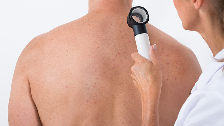 Back acne: How to get rid of back acne