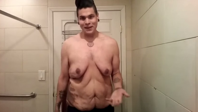 Man Raises 50 000 For Surgery After Revealing Excess Skin Following