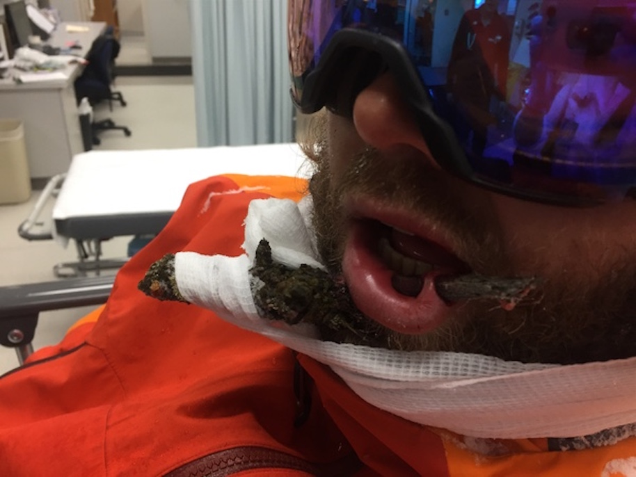 Ski Instructor Impales Face On Tree Branch